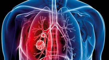 كورونا وسرطان الرئة.. التشابه والاختلاف