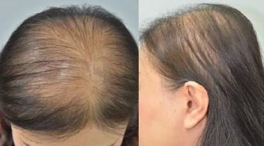 علاج التساقط.. الكشف عمّا يساعد في زيادة نمو الشعر!